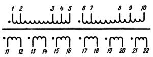 Рис. 2. Электрическая принципиальная схема анодного трансформатора ТА262 -127/220-50
